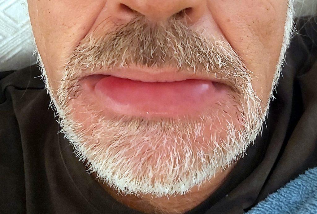 Picadura de avispa tratada con Dióxido de Cloro, antes del tratamiento