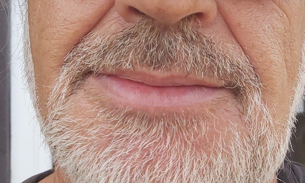 Picadura de avispa tratada con Dióxido de Cloro, después del tratamiento con CDS oral y tópico.