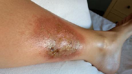 Caso tratado con CDS. Después de 5 días de tratamiento con CDS y MMS
