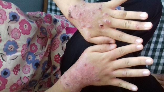 Caso tratado con CDS. Dermatitis atópica Antes del tratamiento con CDS y MMS